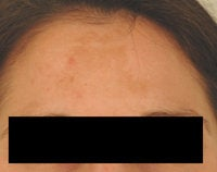Melasma Treatment  before 120086
