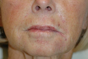 Juvederm for Smile Lines Long Beach, CA Before and After Pictures after 204767