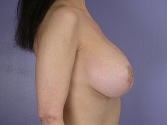 Breast Lift / Breast Augmentation after 291184