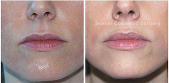 Juvederm: Subtle Lip Enhancement before 355964
