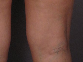 Sclerotherapy to Leg Veins before 308316
