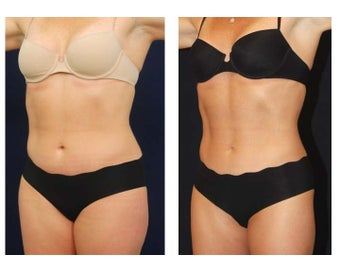 Liposuction before 286777