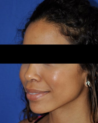 African American Rhinoplasty after 364919