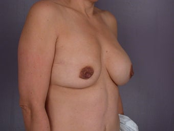 Breast Implants  before 302549