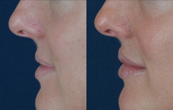 Lip Augmentation before 511369