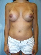 Revision Breast Surgery, Internal Sutures (Internal Bra) after 392037