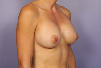 Breast Implants  after 309698