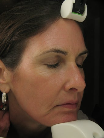 Fraxel Dual Laser for wrinkles around eye, cheeks, forehead after 198835