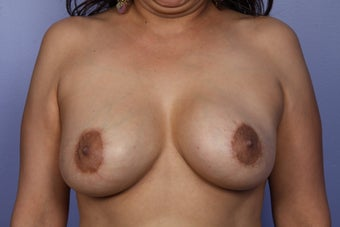 Breast Lift / Breast Augmentation  after 291024