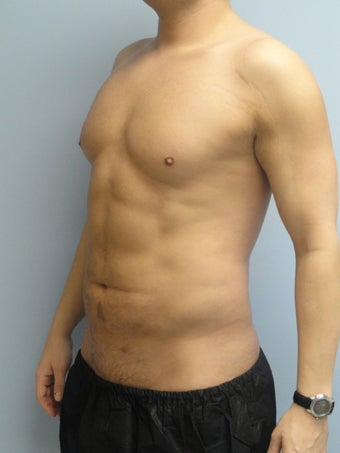 VASER Liposuction (HiDef) after 570277