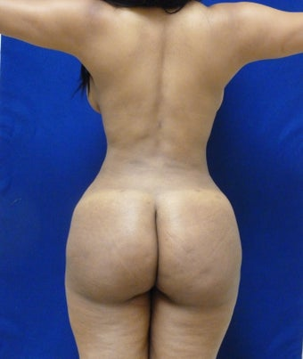 Buttock Augmentation after 548395