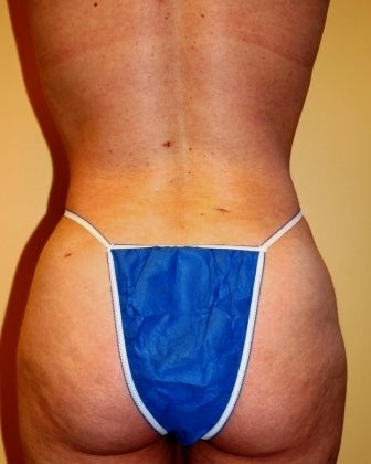 Body Jet (water assisted) liposuction after 235768