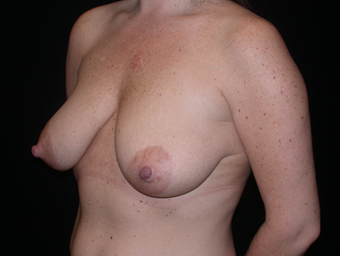 Mastopexy (Breast Lift) before 263467