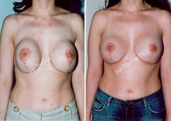 Breast Reconstruction before 243208