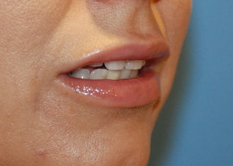 Lip Augmentation after 199329