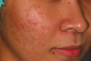 PDT for acne after 376122