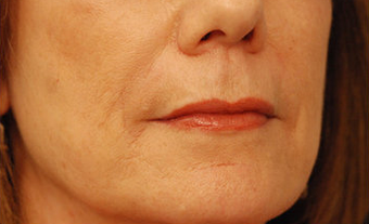Injectable Filler after 301198