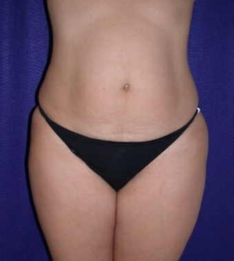 Tummy Tuck (abdominoplasty) before 208470