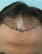 Head FUE and Leg BHT before 195646