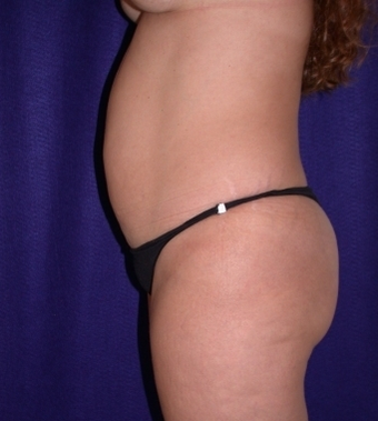 Tummy Tuck (abdominoplasty) 208470