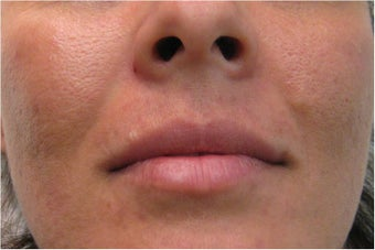 Juvederm for upper lip and nasolabial folds before 77460