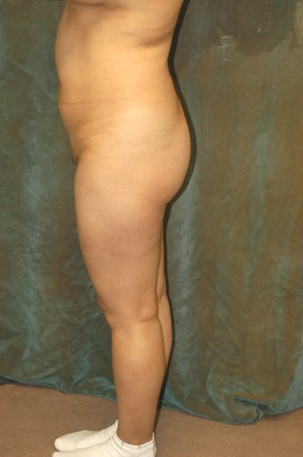 Women's Buttocks Augmentation  before 518156