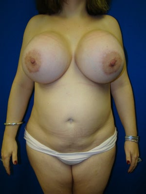 Liposuction and Implant Revision Surgery after 159286