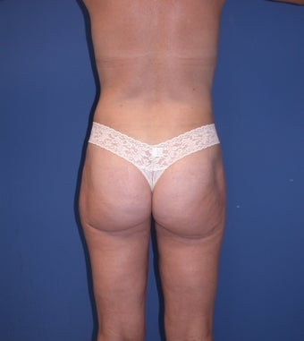 Before & After Liposculpture of the buttocks, thighs & hips after 48606