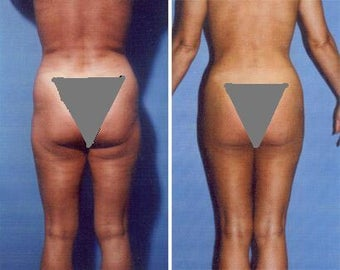 Liposuction before 636100