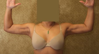 liposuction of arms for women after 583554