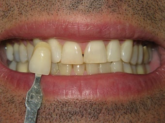 Zoom Whitening before 303412