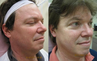 Intense pulsed light (IPL) photofacial for severe sun damage before 390175