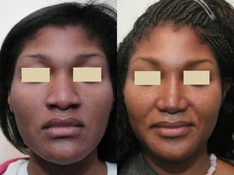 African American Rhinoplasty before 137748
