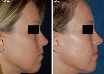 Fraxel Laser Resurfacing before 97891