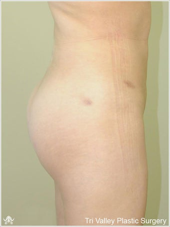 Brazilian Buttock Lift after 420873