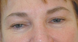 Botox forehead lines (frown lines)  after 91313