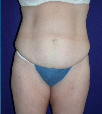 Tummy Tuck (abdominoplasty) before 208482