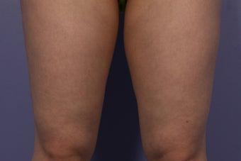 CoolSculpting Inner Thighs after 429659