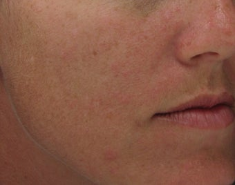 Hyperpigmentation treated with Obagi for 3 months before 52832