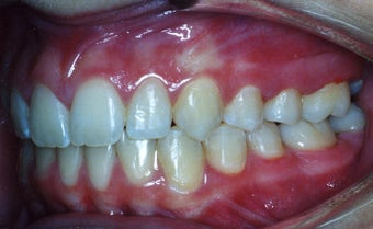 Orthodontic braces to correct a Class II malocclusion after 404703