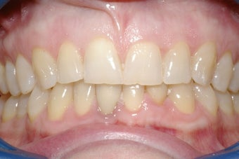 Porcelain Veneers four front teeth before 364514