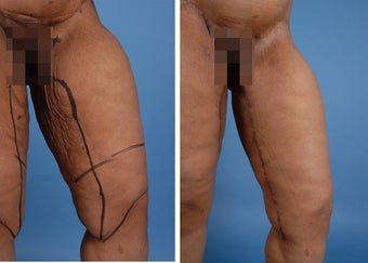 Thighplasty after 303693