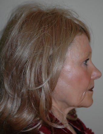 High SMAS Face Lift, Neck Lift, Perioral Dermabrasion 468008