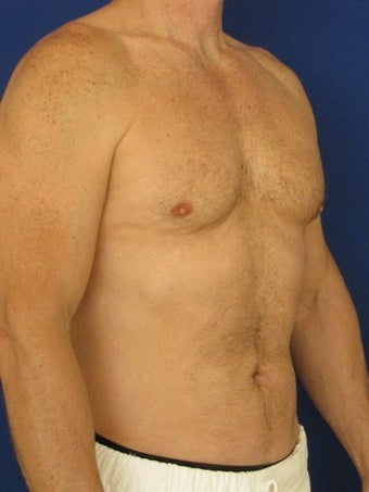 Vaser Hi Def Liposuction of chest, abdomen, back and flanks 422687