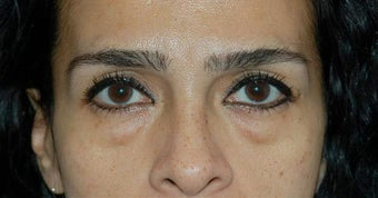Lower lid blepharoplasty and Fat Transfer to lower lids and midface before 307123