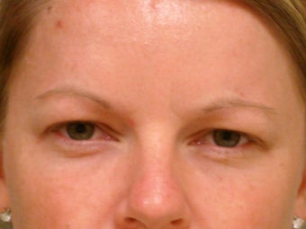 Botox Cosmetic after 375185