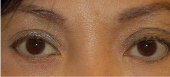 Ptosis Correction after 555502