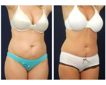 Abdominoplasty - Tummy Tuck after 396151