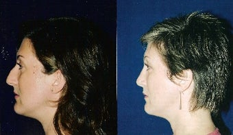 Rhinoplasty and Septoplasty after 241677