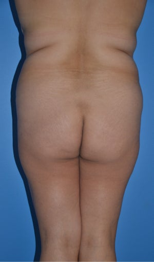 Liposuction and Abdominoplasty before 555508